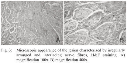 Mucosal Neuroma Histology was traumatic neuroma